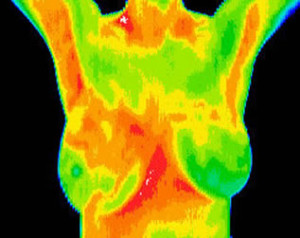breasts thermography